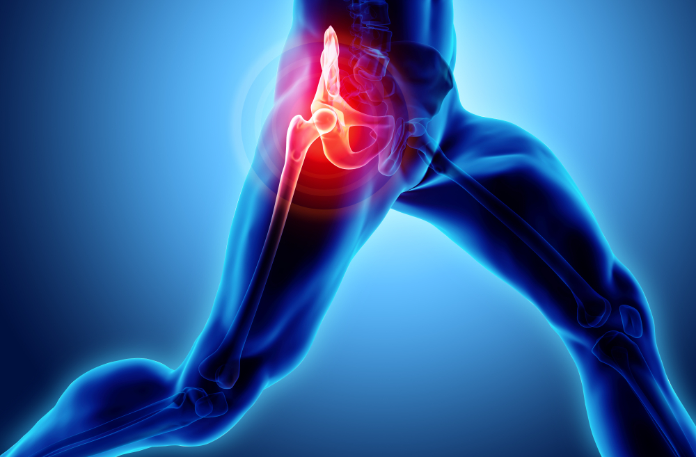Common Causes of Hip Pain and Remedies for Relief Texas Partners Healthcare Group