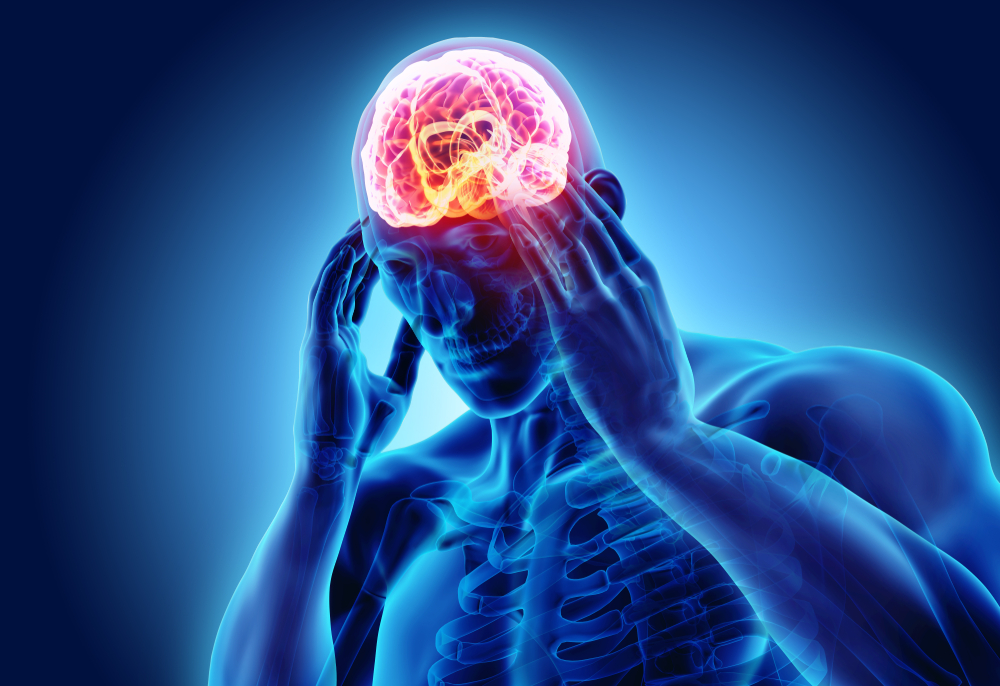 What Causes Migraines and Headaches| TXP Healthcare