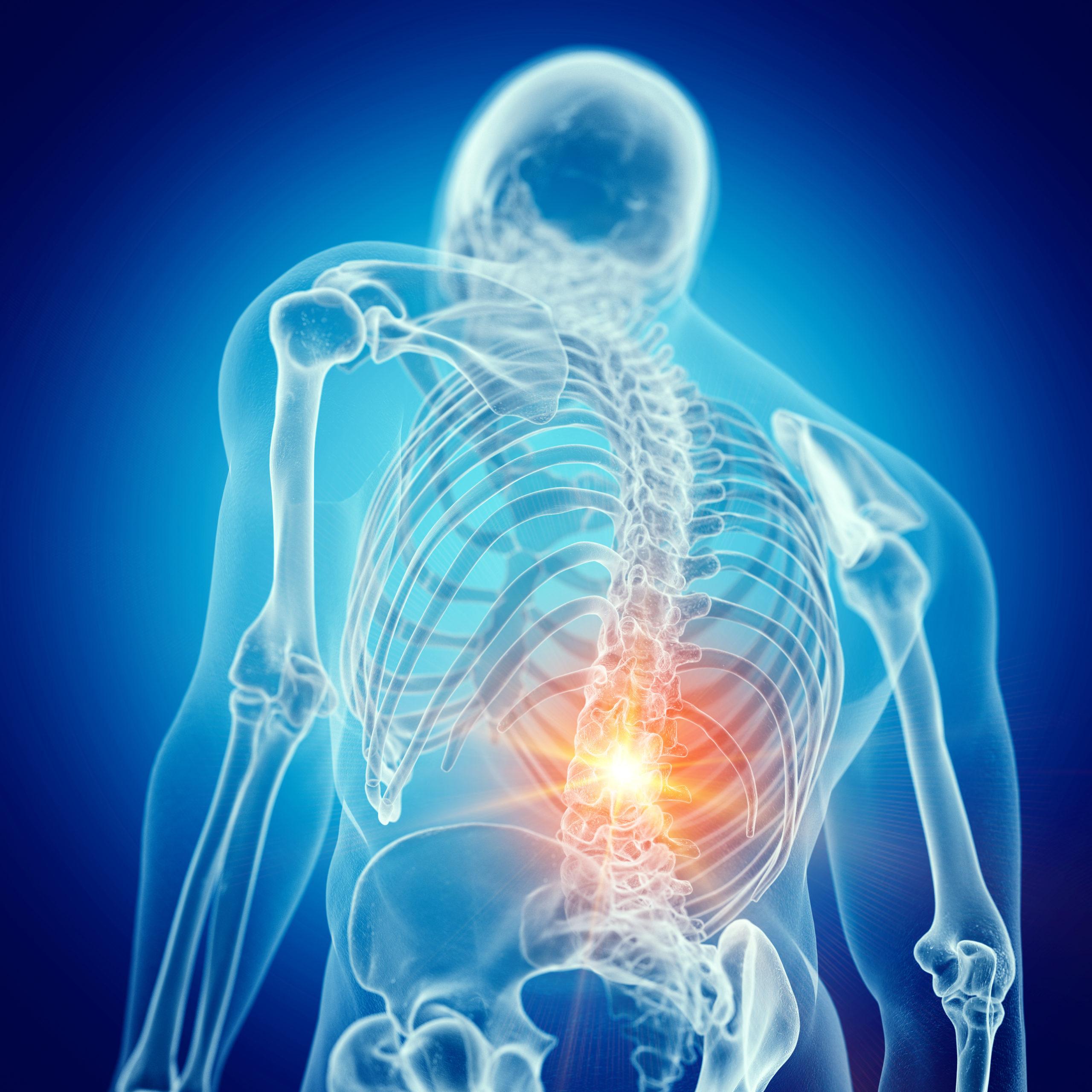 Lower Back Pain: Causes, Symptoms, Treatments